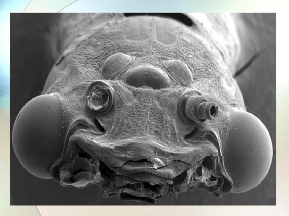 микробы на фотографии чтобы
