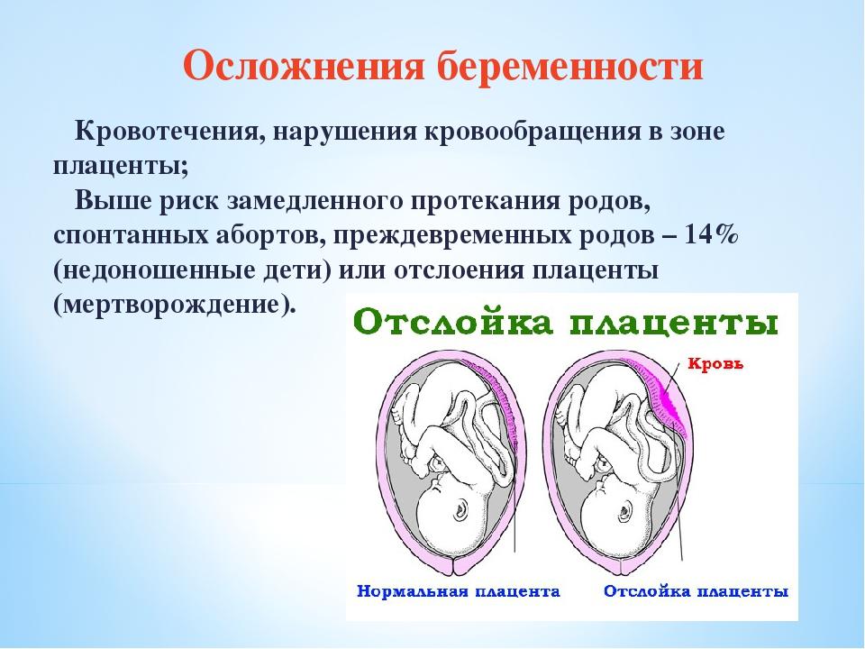 Нарушение кровообращения у беременных 32