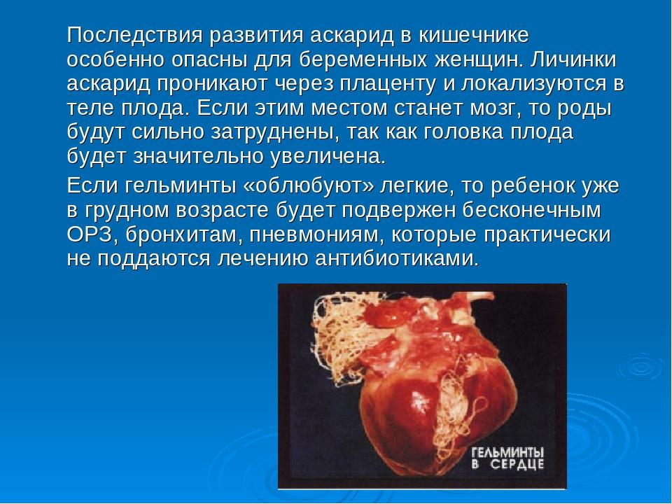 Последствия развития аскарид в кишечнике особенно опасны для беременных женщ...