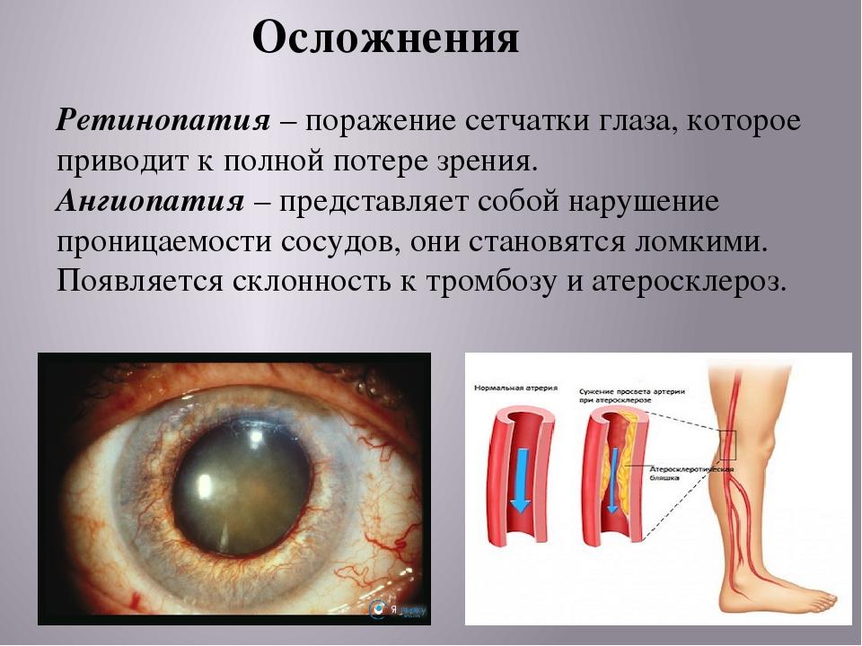 Сахарный диабет и глаз реферат