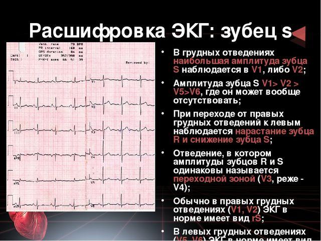 Как расшифровать кардиограмму в домашних условиях
