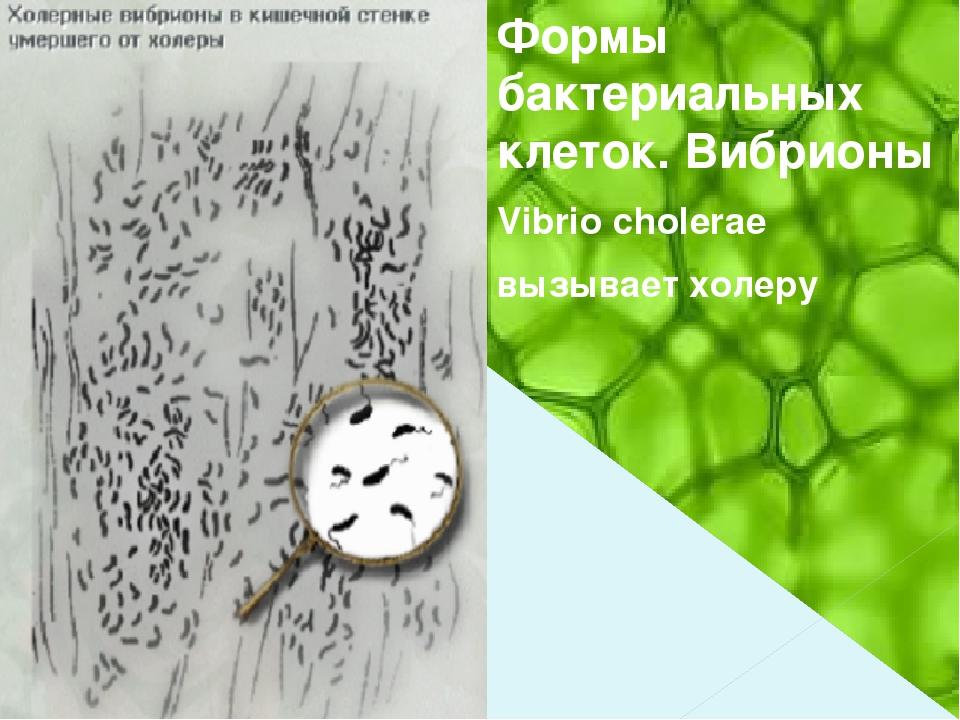 Формы бактериальных клеток. Вибрионы Vibrio cholerae вызывает холеру