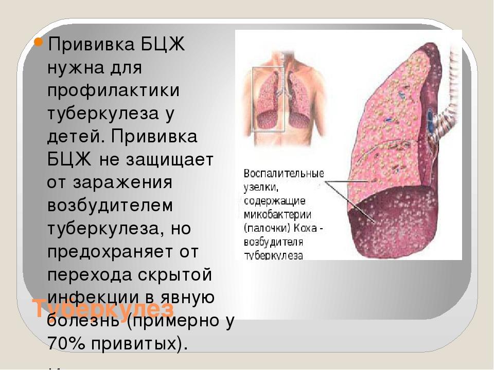 Туберкулез Прививка БЦЖ нужна для профилактики туберкулеза у детей. Прививка...