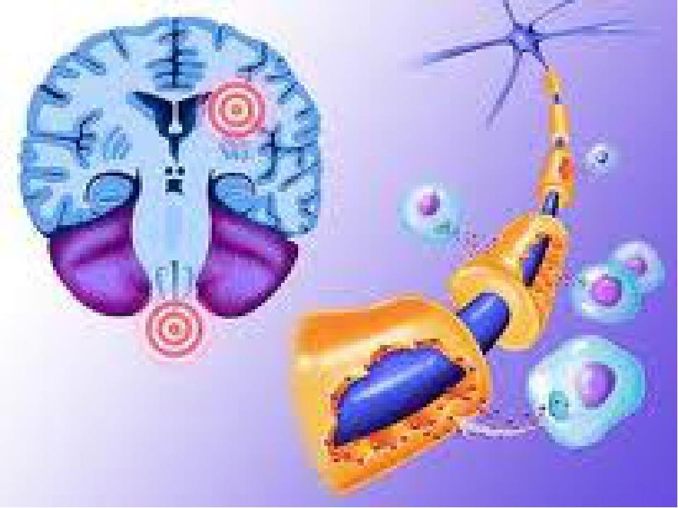 Формы рассеянного склероза у взрослых и детей: причины