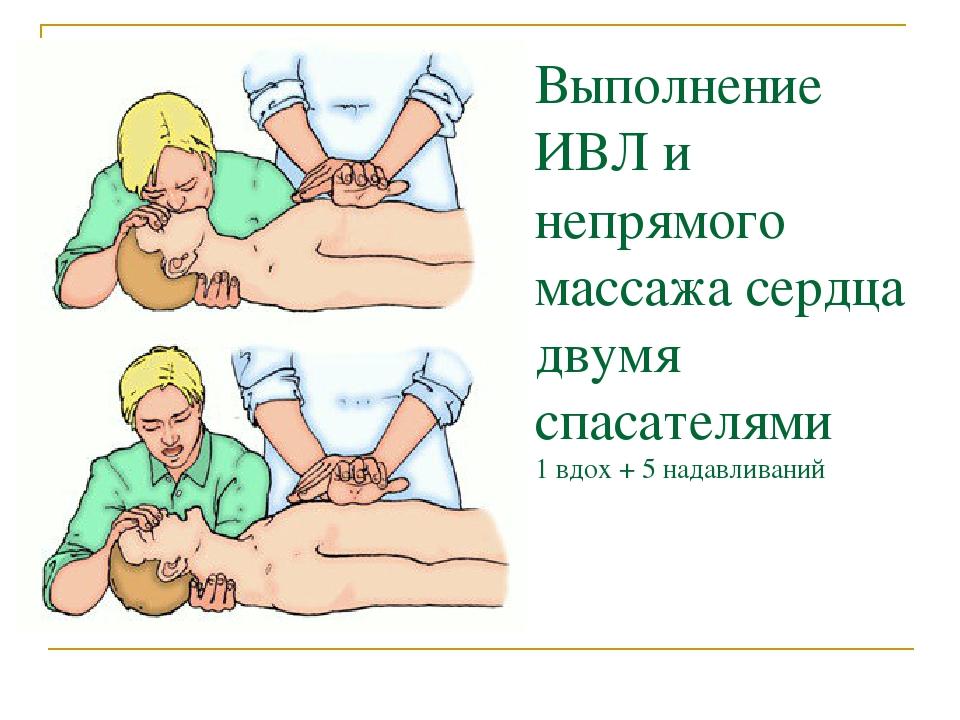 Какие действия выполняются при непрямом массаже