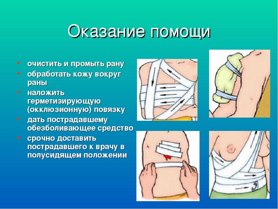 Ранение конечности как накладывать повязки на раны