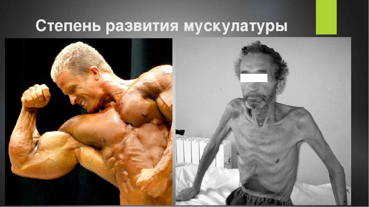 Степень развития мускулатуры