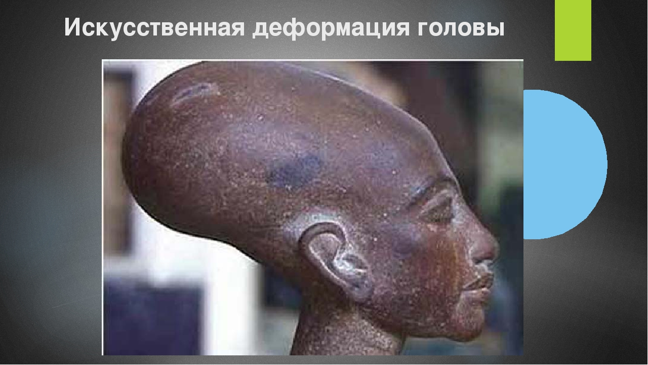 Искусственная деформация головы