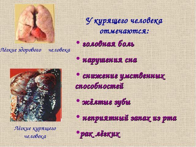 Лёгкие здорового человека Лёгкие курящего человека У курящего человека отмеча...