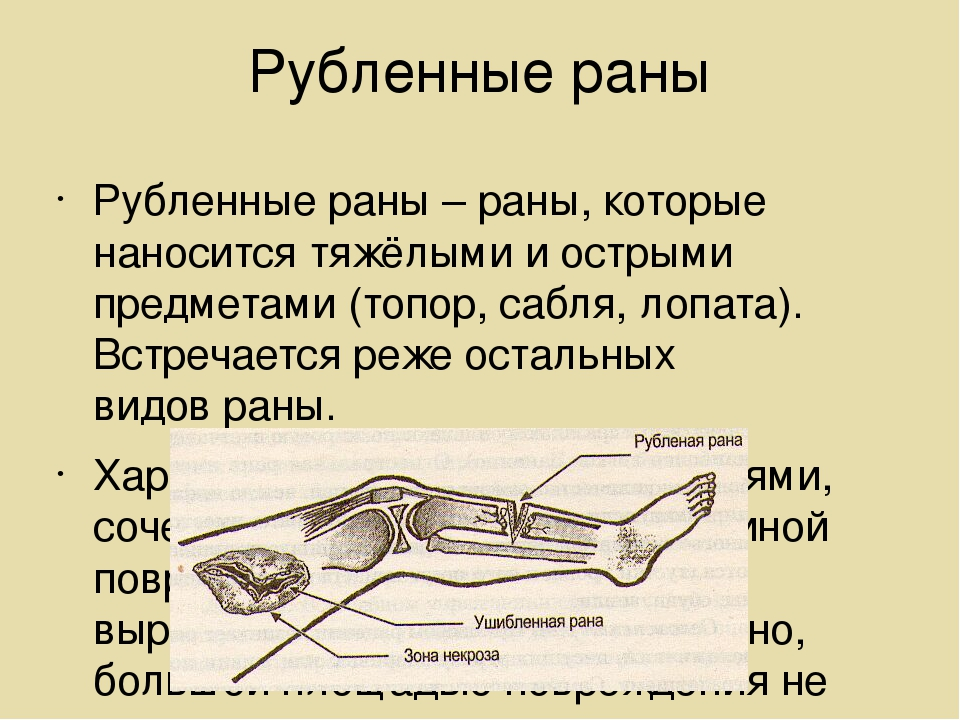 Рубленные раны Рубленные раны – раны, которые наносится тяжёлыми и острыми пр...