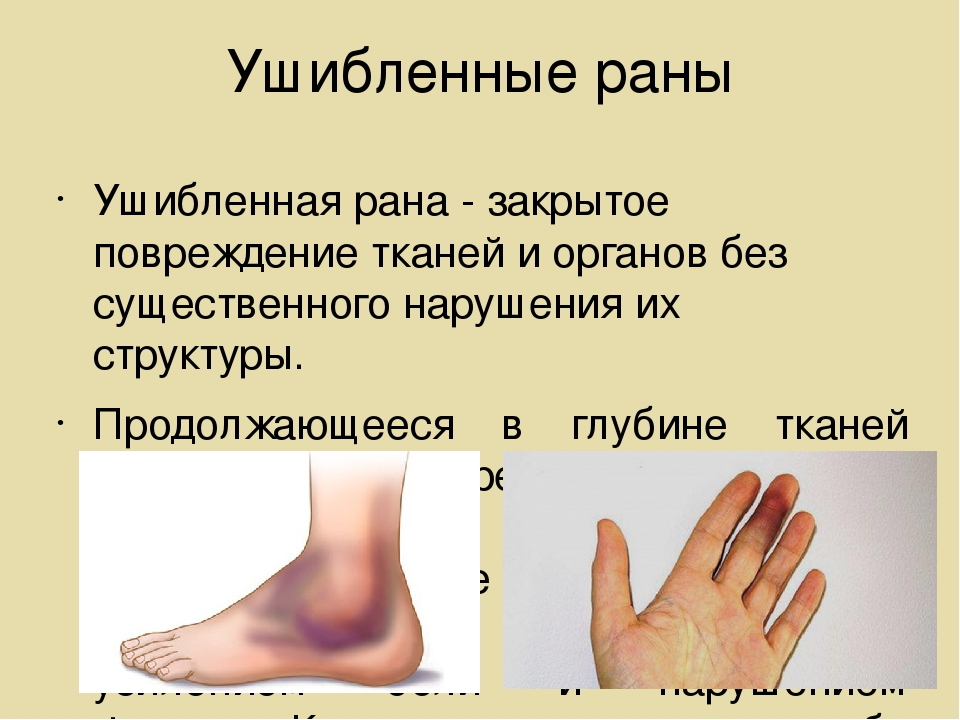 Ушибленные раны Ушибленная рана - закрытое повреждение тканей и органов без с...