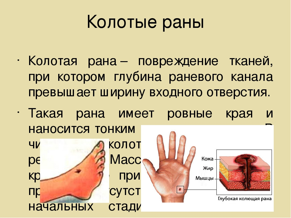 Колотые раны Колотая рана– повреждение тканей, при котором глубина раневого...