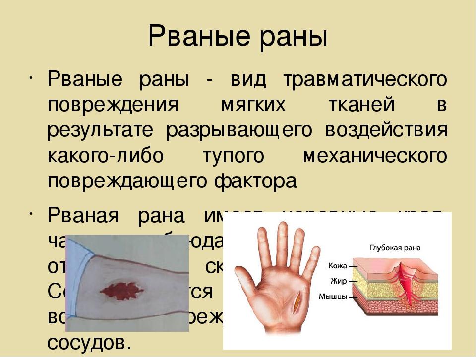 Рваные раны Рваные раны - вид травматического повреждения мягких тканей в рез...