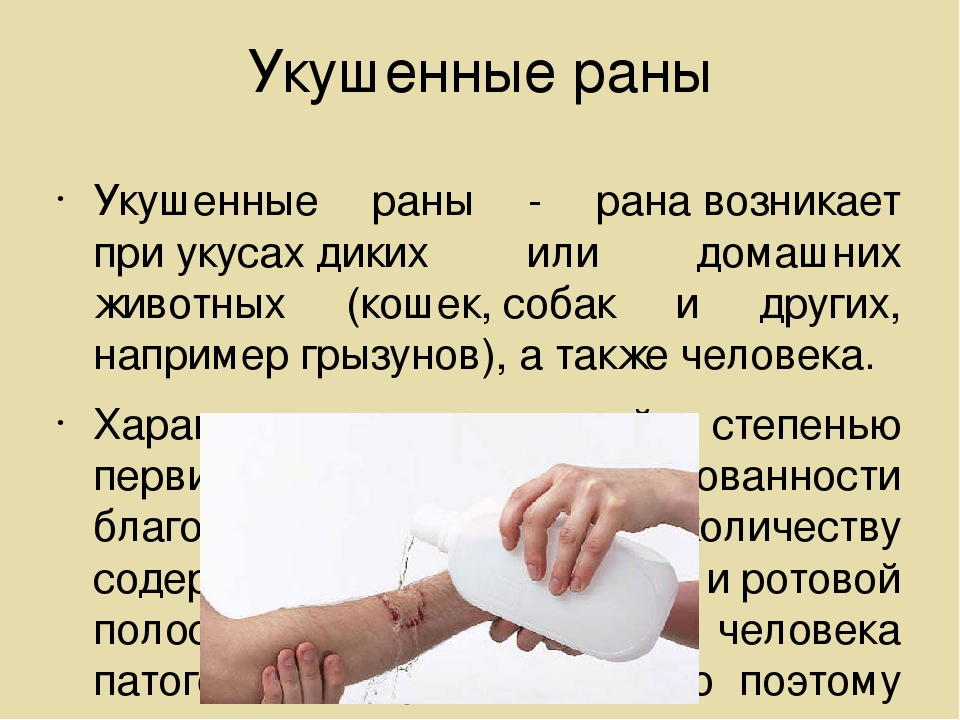Укушенные раны Укушенные раны - ранавозникает приукусахдиких или домашних...