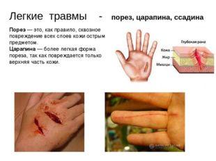 Легкие травмы - порез, царапина, ссадина Порез— это, как правило, сквозное п
