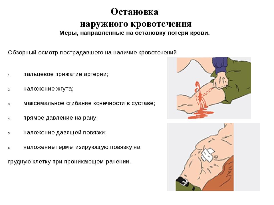Обзорный осмотр пострадавшего на наличие кровотечений пальцевое прижатие арте...