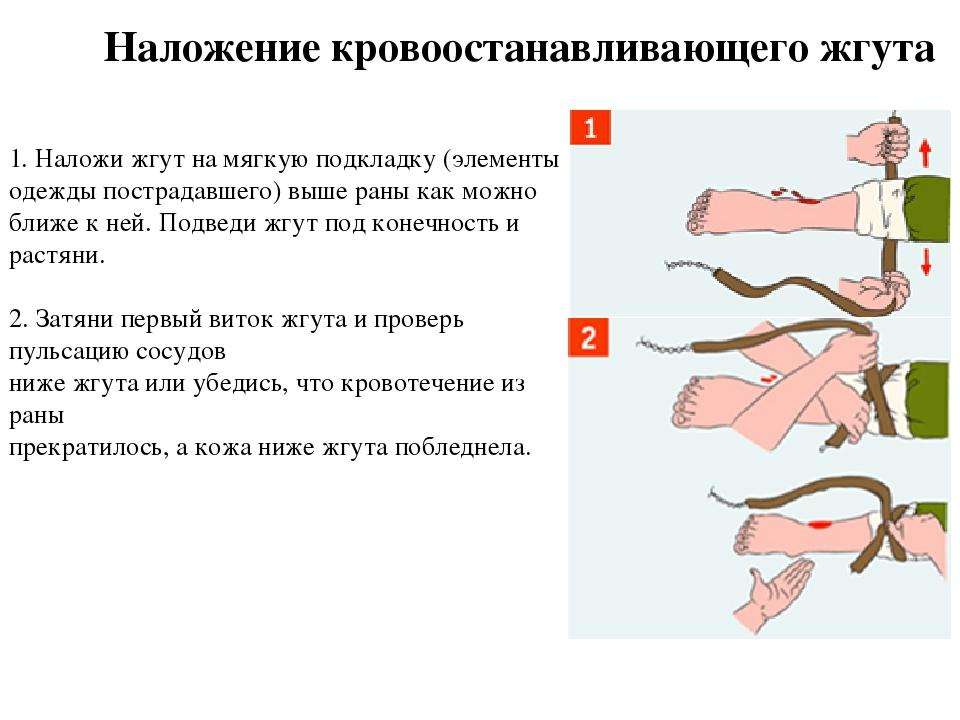1. Наложи жгут на мягкую подкладку (элементы одежды пострадавшего) выше раны...