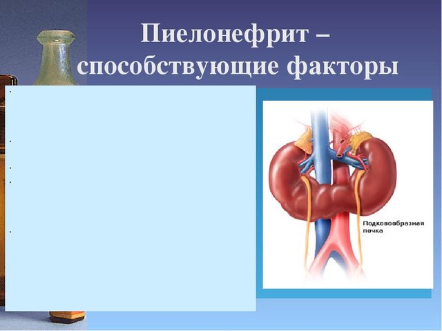 урология мочекаменная болезнь лекция