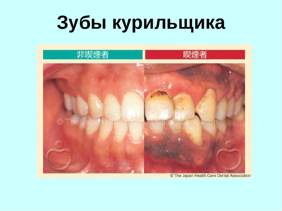 может ли стоматолог определить курит человек тебя люблю