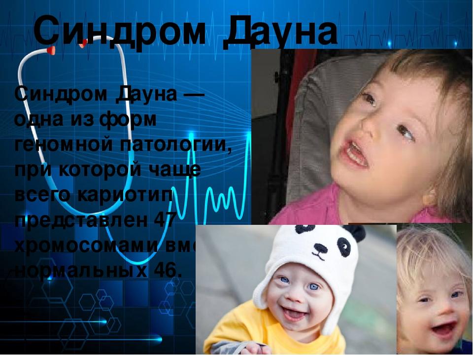 Реферат на тему дети с синдромом дауна 3022