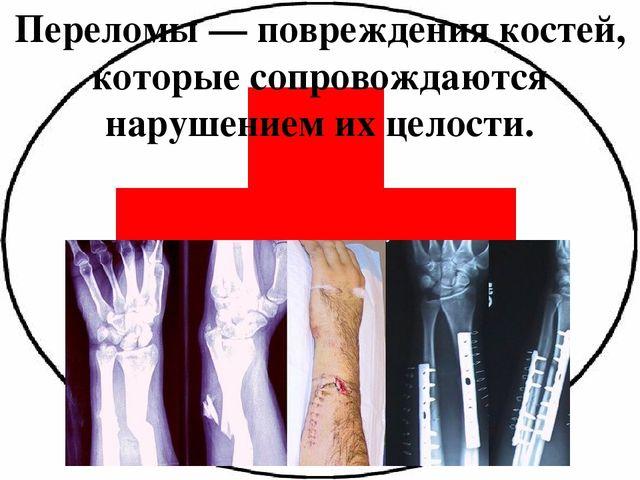"""Презентация по ОБЖ на тему """"Виды переломов, первая медецинская ..."""