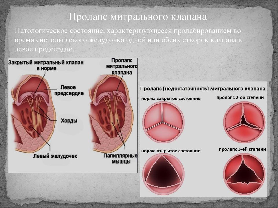 Пролапс митрального клапана первой