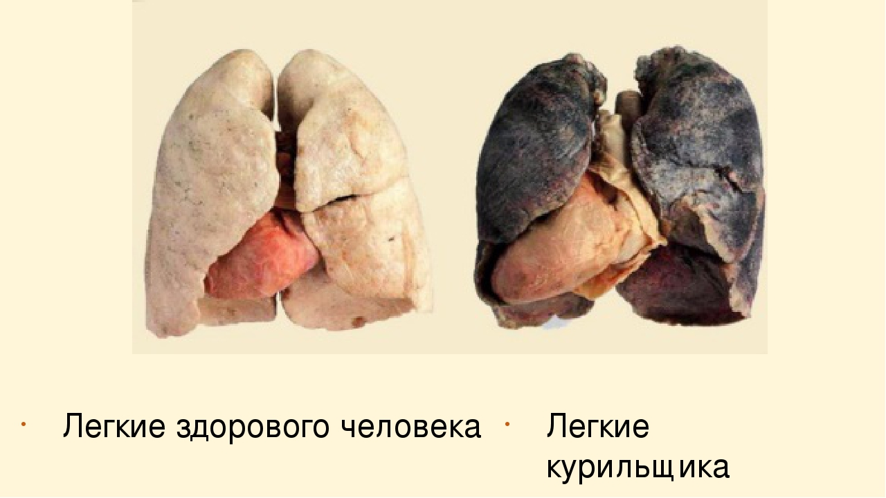 Картинки курильщиков легкие