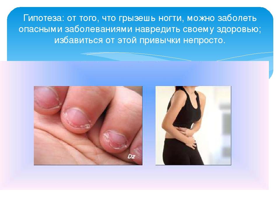 Как избавится от привычки все грызть ногти