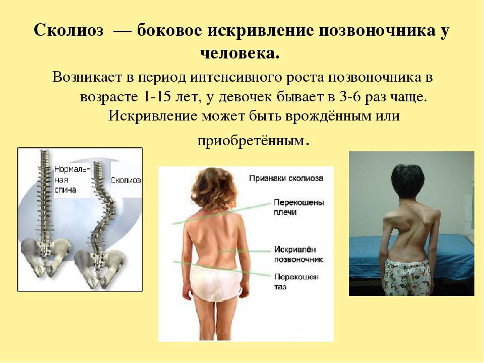 Искривление позвоночника и его влияние на органы