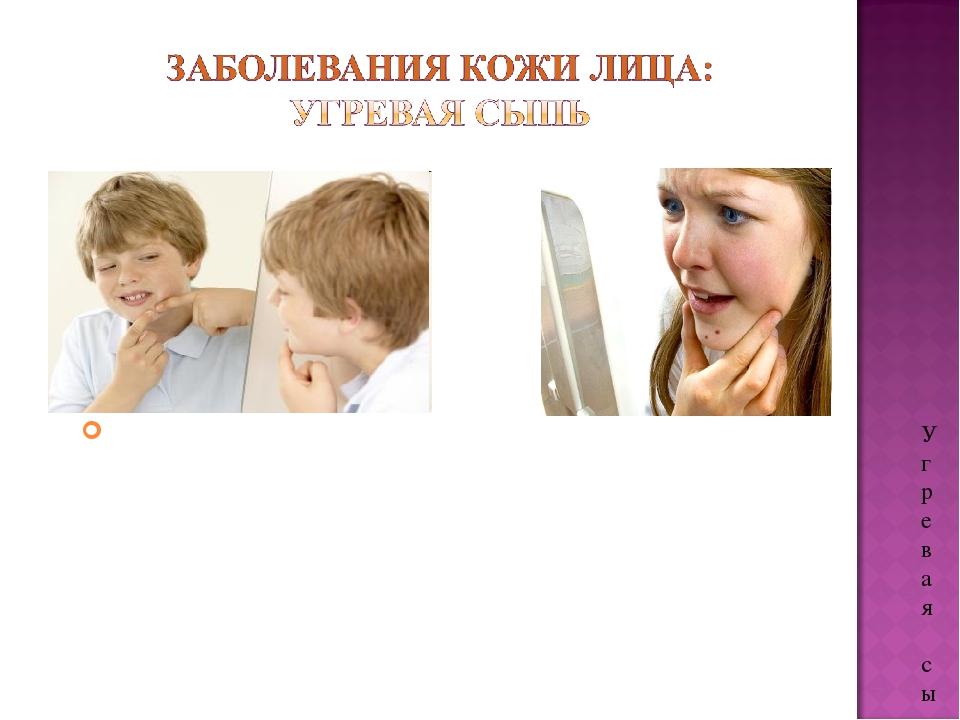 Угревая сыпь часто возникает у подростков в связи с перестройкой организма. Ч...