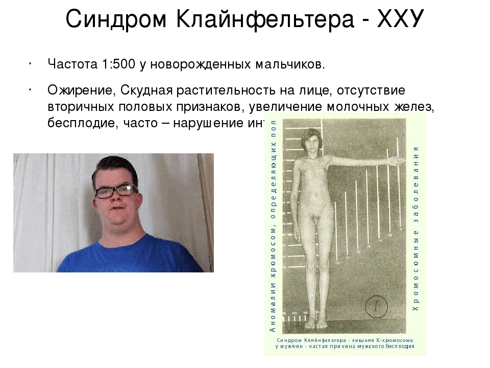 an overview of the genetic disorder klinefelters syndrome Xyy syndrome is a genetic condition that occurs when a male has an extra copy of the y chromosome in each of their cells (xyy) sometimes, this mutation is only present in some cells males with.