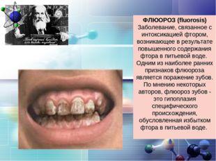 ФЛЮОРОЗ (fluorosis) Заболевание, связанное с интоксикацией фтором, возникающе