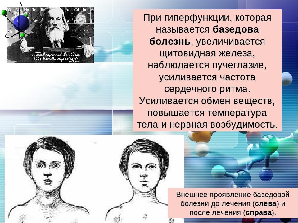 При гиперфункции, которая называется базедова болезнь, увеличивается щитовидн...