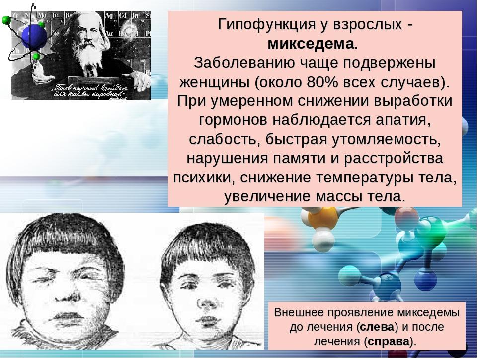 Внешнее проявление микседемы до лечения (слева) и после лечения (справа). Гип...