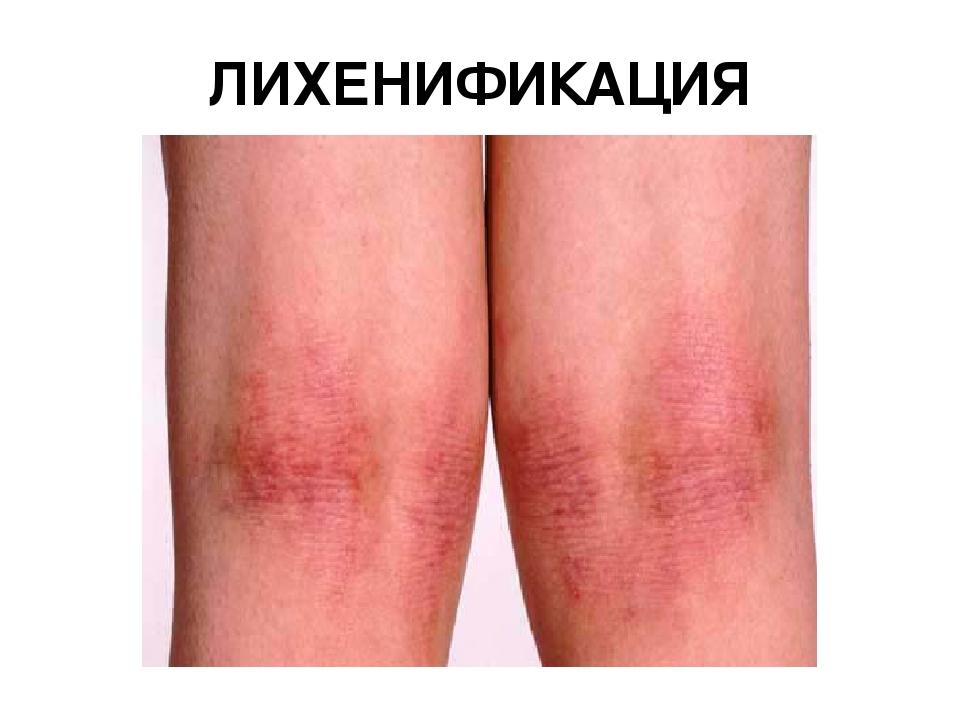 Lichenification Eczema - #GolfClub