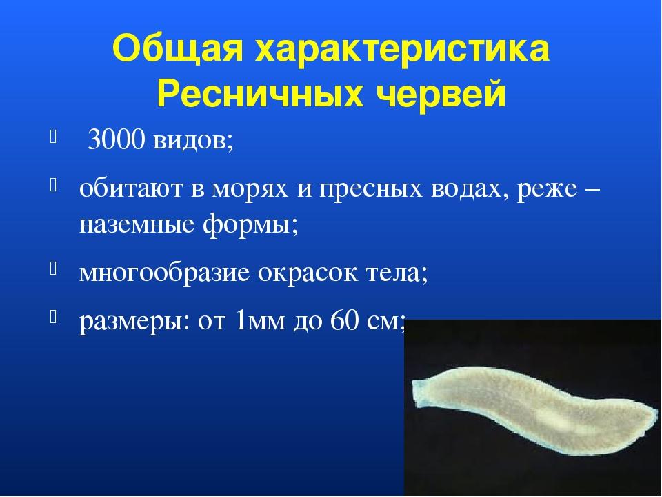 Общая характеристика Ресничных червей 3000 видов; обитают в морях и пресных в...