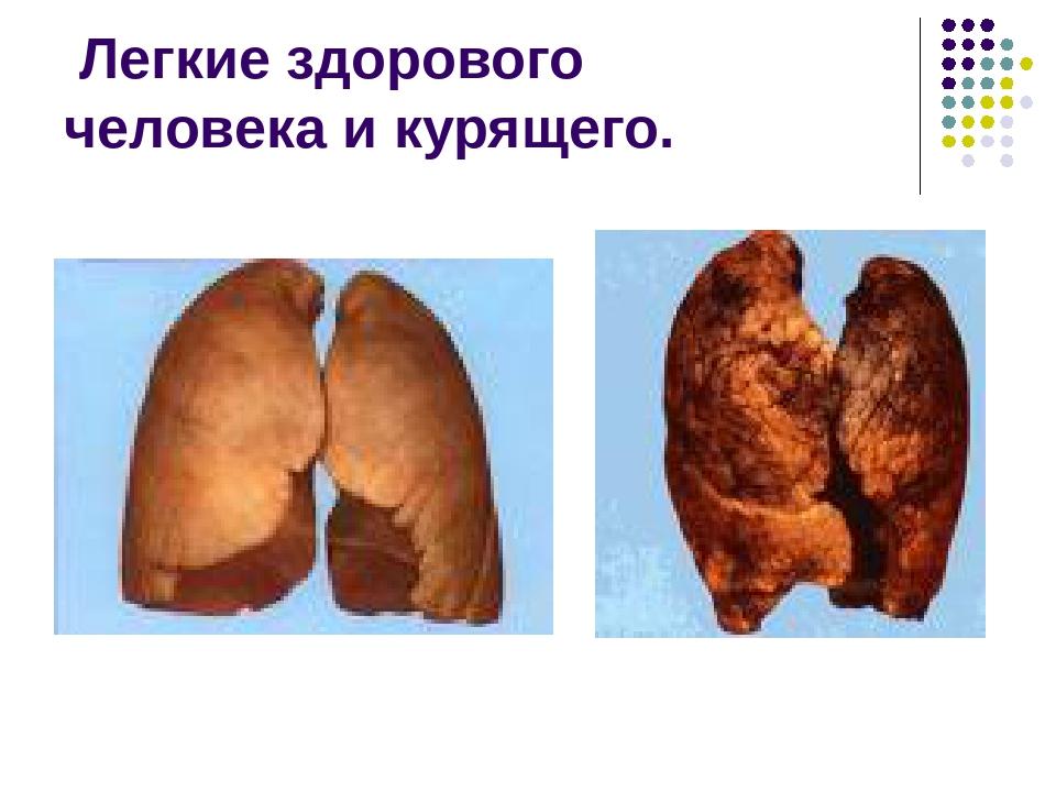 Легкие здорового человека и курящего.