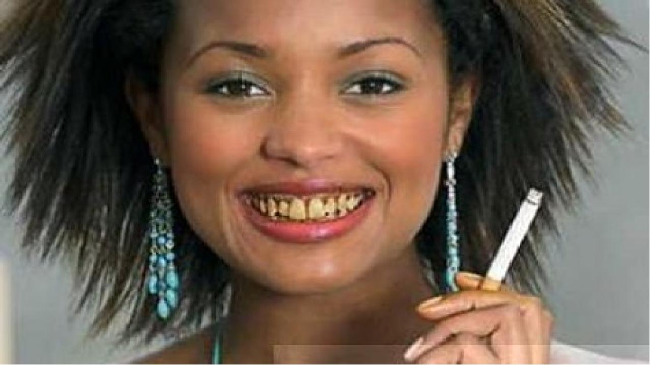 Желтеют зубы от чифира и сигареты
