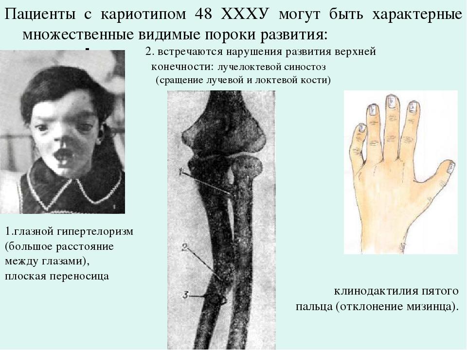 Пациенты с кариотипом 48 ХХХУ могут быть характерные множественные видимые по...