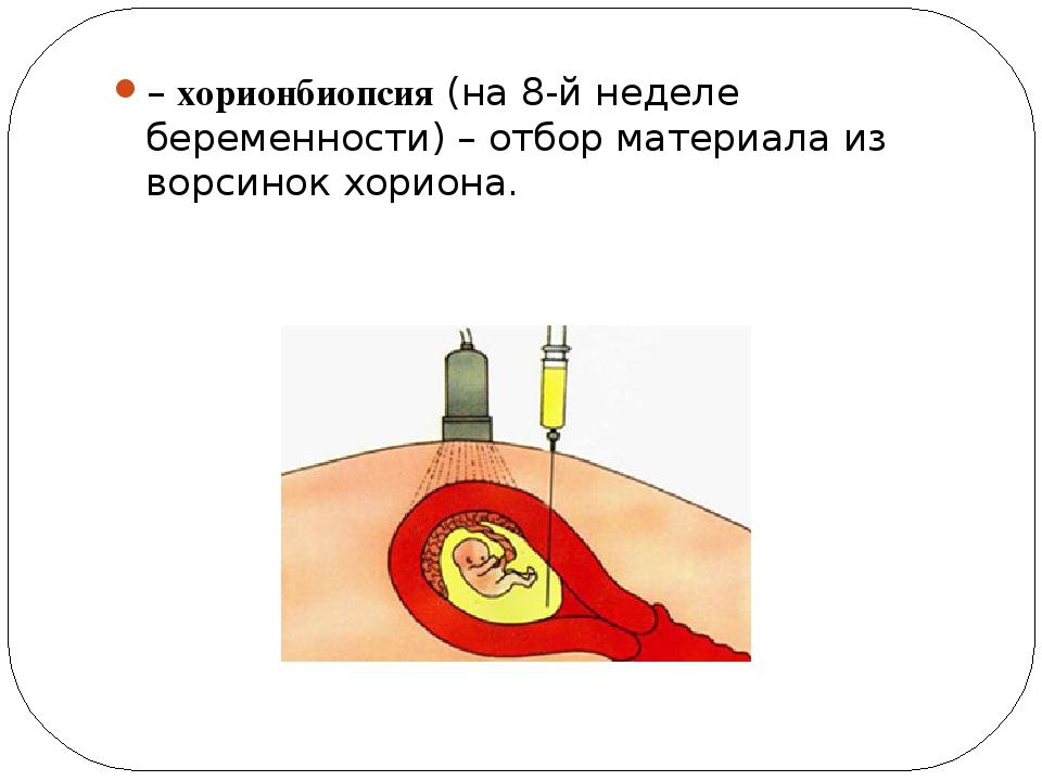 – хорионбиопсия (на 8-й неделе беременности) – отбор материала из ворсинок хо...