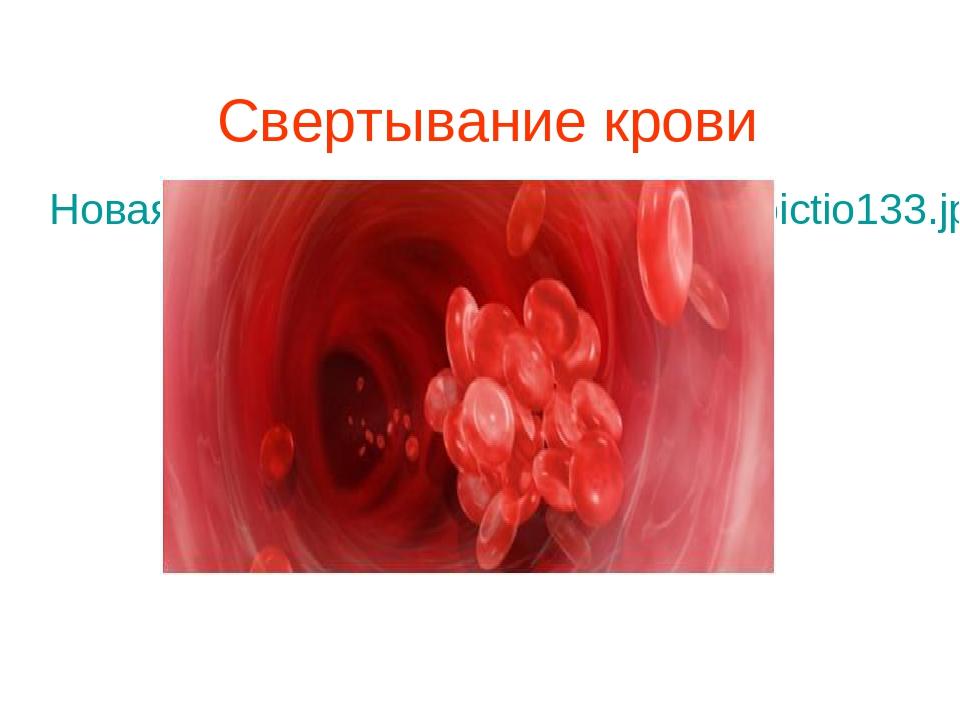 Свертывание крови Новая папка (3)\031609-0738-vocabpictio133.jpg