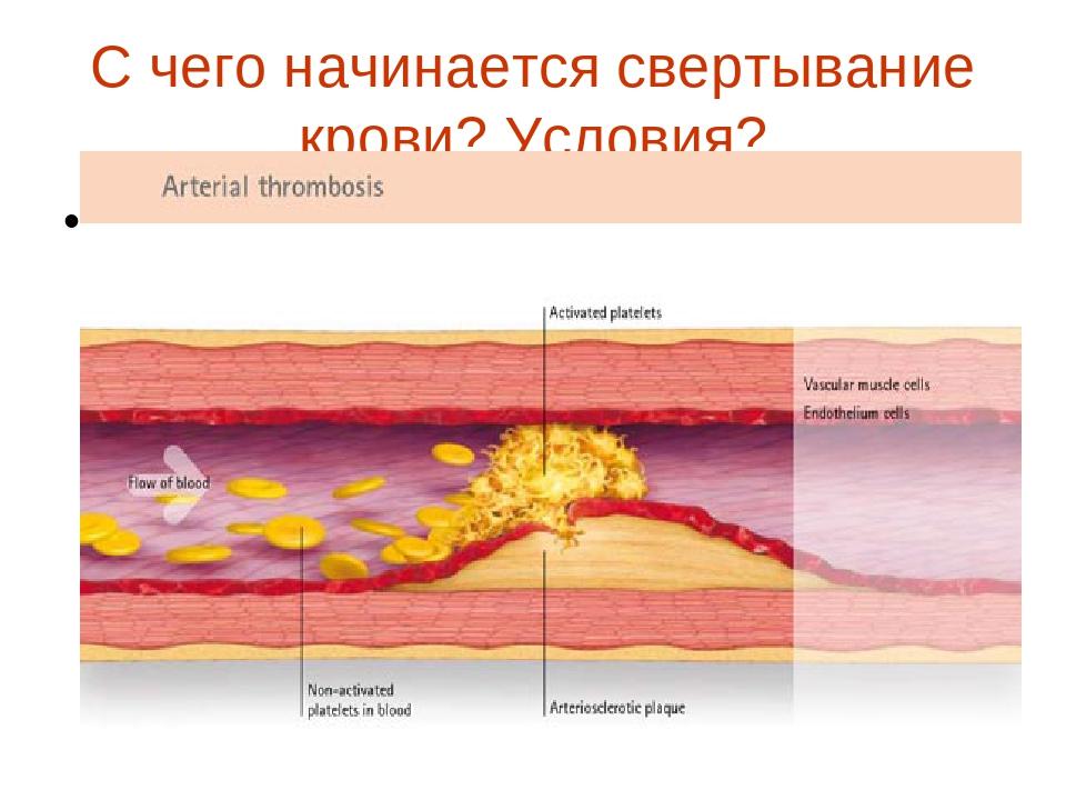 С чего начинается свертывание крови? Условия? Новая папка (3)\02_zoomed.jpg