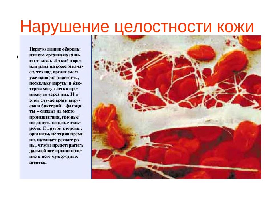 Нарушение целостности кожи Новая папка (3)\1_48.jpg