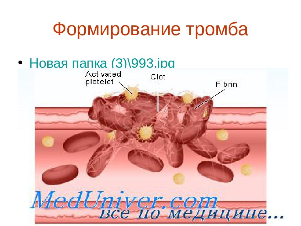 Формирование тромба Новая папка (3)\993.jpg