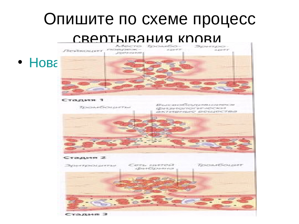 Опишите по схеме процесс свертывания крови. Новая папка (3)\e96136556f7e.jpg