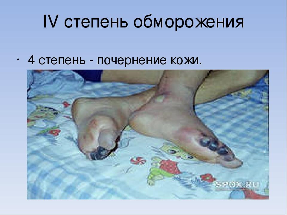 IV степень обморожения 4 степень - почернение кожи.