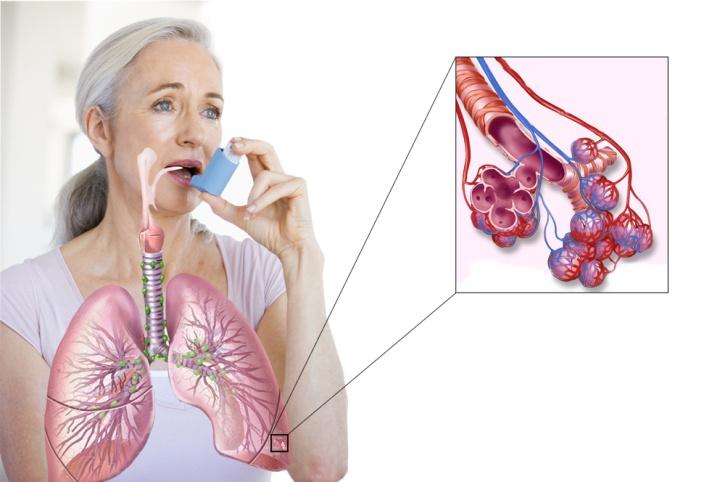 Санбюллетень на тему бронхиальная астма thumbnail