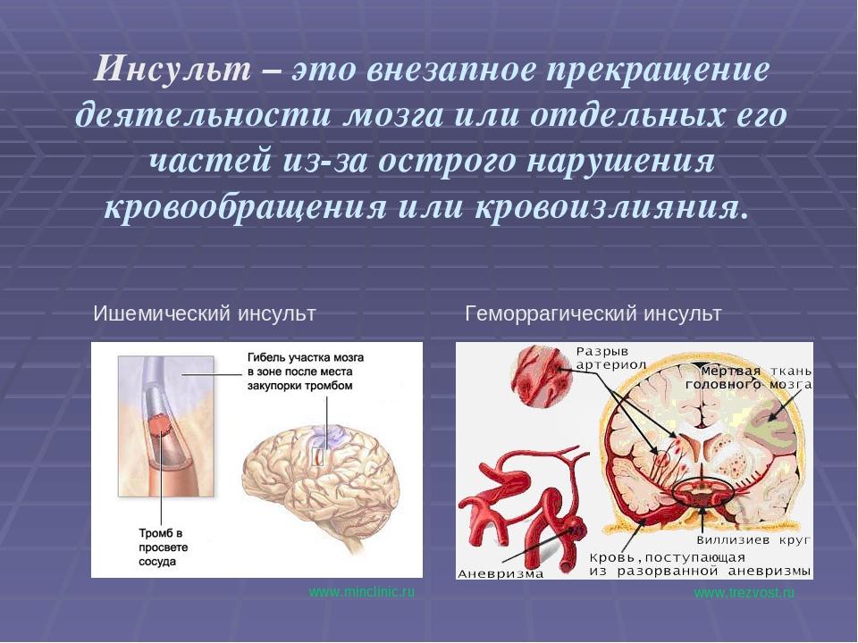 Инсульт – это внезапное прекращение деятельности мозга или отдельных его част...