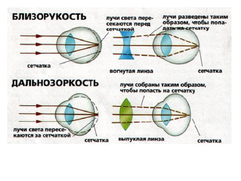 какие очки необходимы близоруким людям а какие дальнозорким