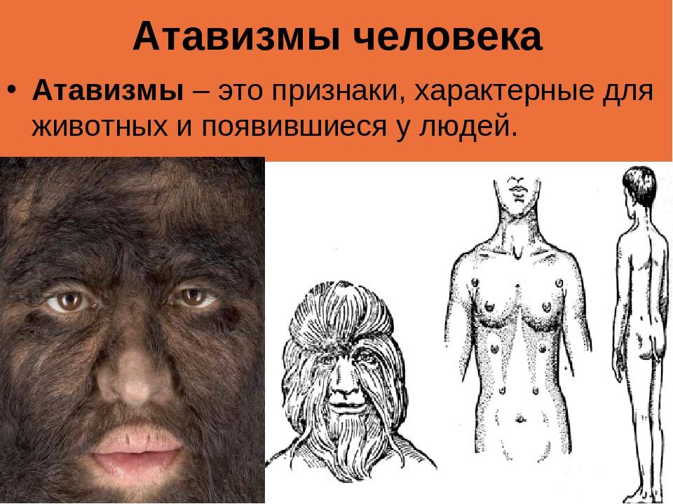 Атавизмы человека Атавизмы– это признаки, характерные для животных и появивш...